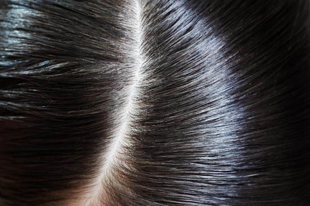 What is Dandruff? | Dandruff, Hair, Dandruff | Reader's Digest