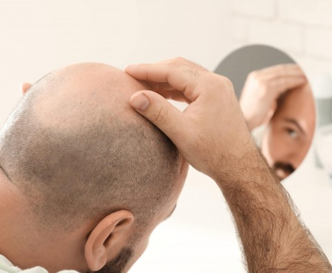 Could a hair transplant be the key to your success?