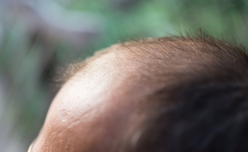 Testosterone affects hair growth